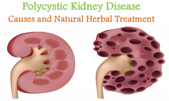 natural herbs for the kidney problem